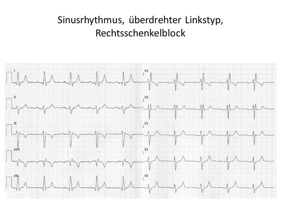 Sinusrhythmus, überdrehter Linkstyp, Rechtsschenkelblock