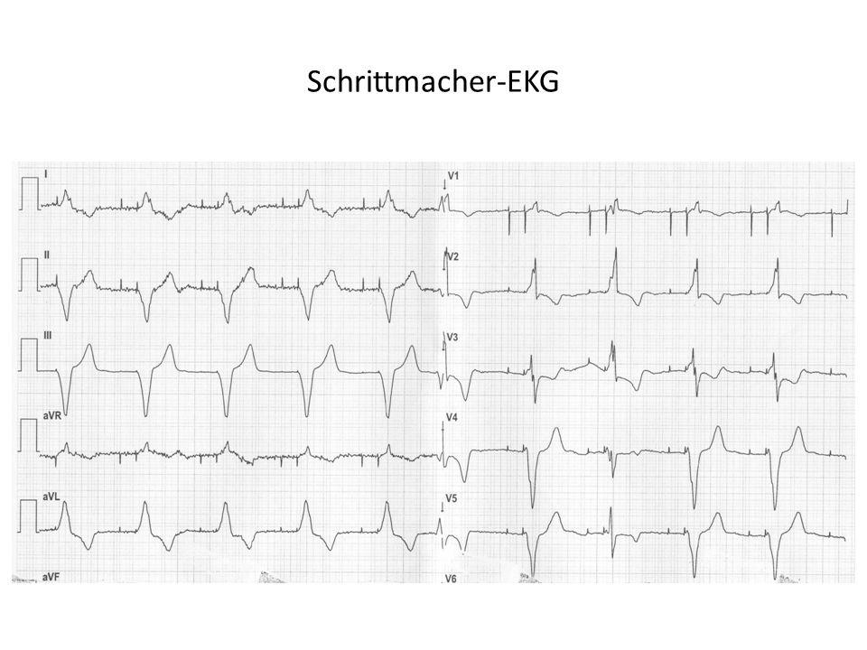 Schrittmacher-EKG
