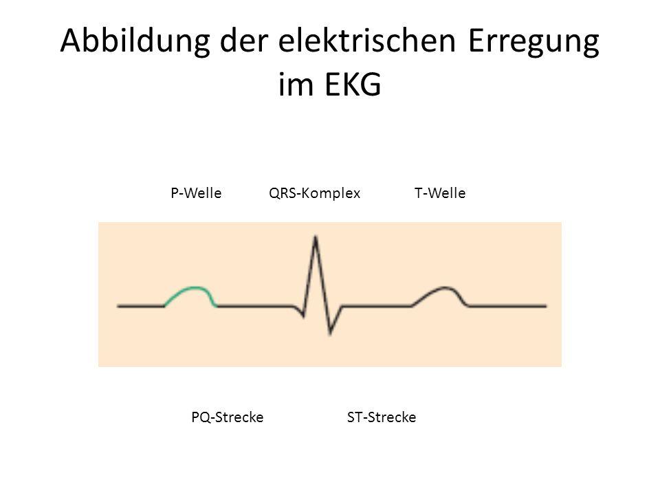 Abbildung der elektrischen Erregung im EKG P-Welle PQ-Strecke QRS-Komplex ST-Strecke T-Welle