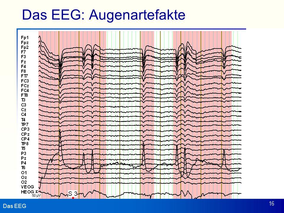 Das EEG 16 Das EEG: Augenartefakte