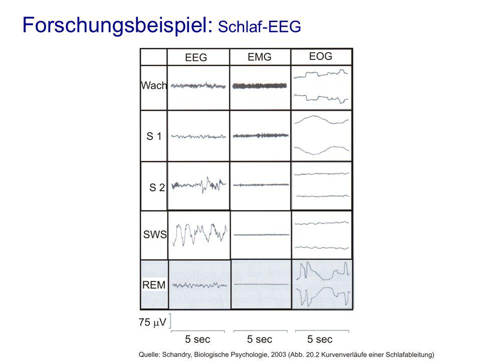Forschungsbeispiel: Schlaf-EEG