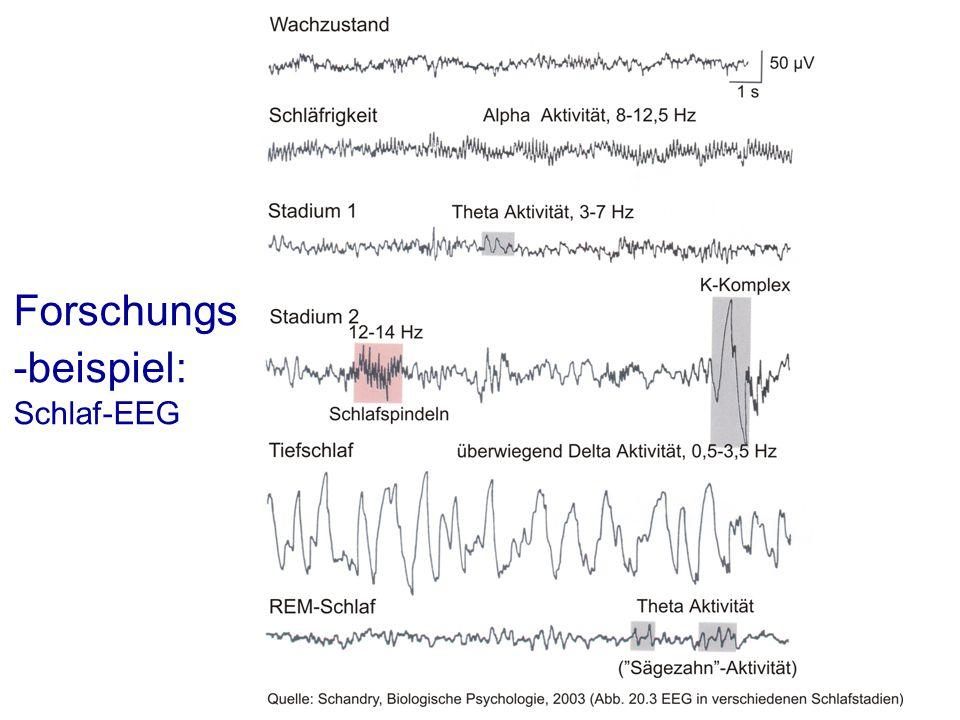 Forschungs -beispiel: Schlaf-EEG