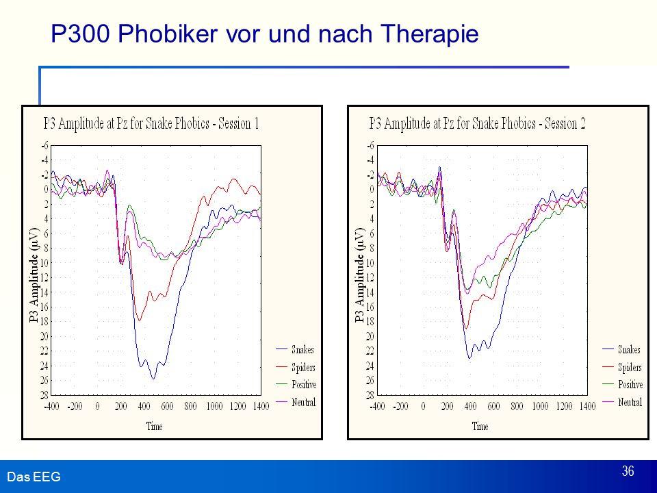 Das EEG 36 P300 Phobiker vor und nach Therapie