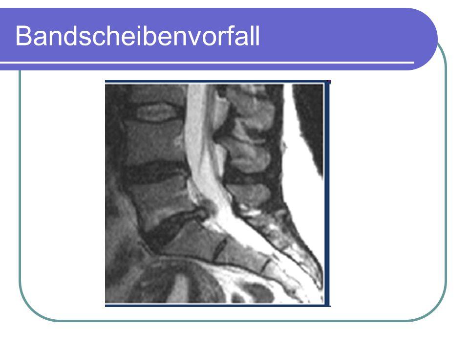 Ultraschall-Tomografie Ultraschall Frequenz > 20kHz nützt umgekehrten piezoelektrischen Effekt (Umwandlung von Schalldruck durch Quarzkristalle in elektrische Impulse, die aufgezeichnet werden).