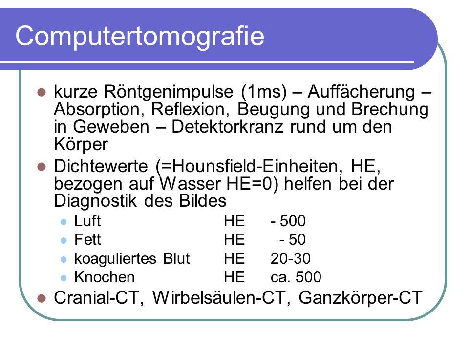 Szintigrafie bildgebendes Verfahren unter Verwendung von Radionukliden - radioaktive Strahlung, γ-Strahlung γ-Strahlung entsteht bei jedem radioaktiven Zerfall – energiereicher (tiefer in den Körper eindringend, gefährlicher) als α- und β-Strahlung Strahlenbelastung – gemessen inSievert (Sv) – 1 Sv=1J/kg