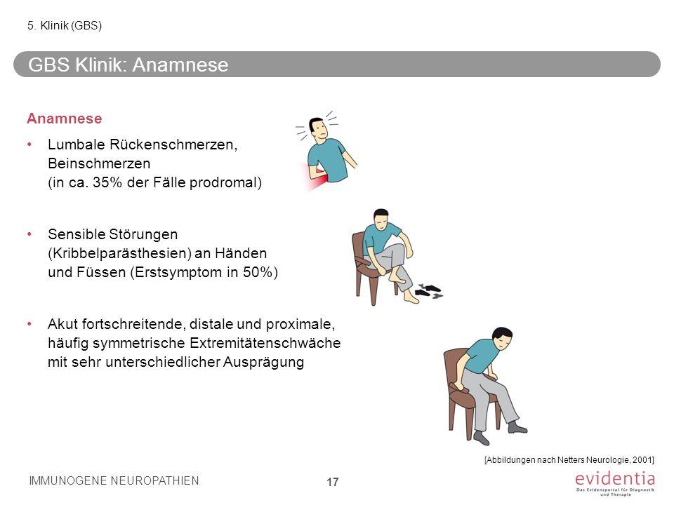 GBS Klinik: Anamnese Anamnese Lumbale Rückenschmerzen, Beinschmerzen (in ca. 35% der Fälle prodromal) Sensible Störungen (Kribbelparästhesien) an Händ