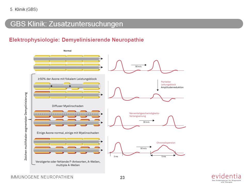GBS Klinik: Zusatzuntersuchungen 23 5. Klinik (GBS) IMMUNOGENE NEUROPATHIEN Elektrophysiologie: Demyelinisierende Neuropathie