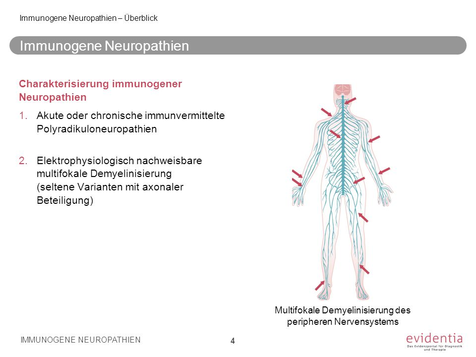 Wichtige Differentialdiagnosen CIDP/1 IMMUNOGENE NEUROPATHIEN 65 6.