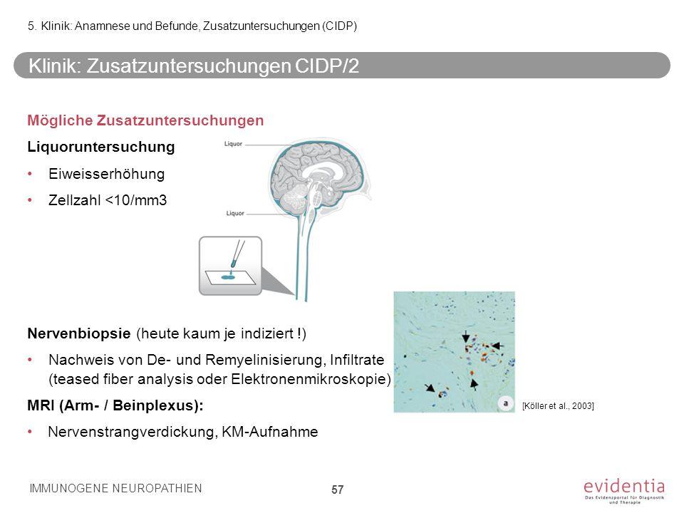 Klinik: Zusatzuntersuchungen CIDP/2 Mögliche Zusatzuntersuchungen Liquoruntersuchung Eiweisserhöhung Zellzahl <10/mm3 Nervenbiopsie (heute kaum je ind