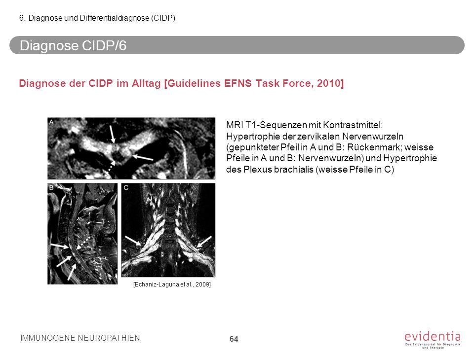 Diagnose CIDP/6 Diagnose der CIDP im Alltag [Guidelines EFNS Task Force, 2010] IMMUNOGENE NEUROPATHIEN 64 6. Diagnose und Differentialdiagnose (CIDP)