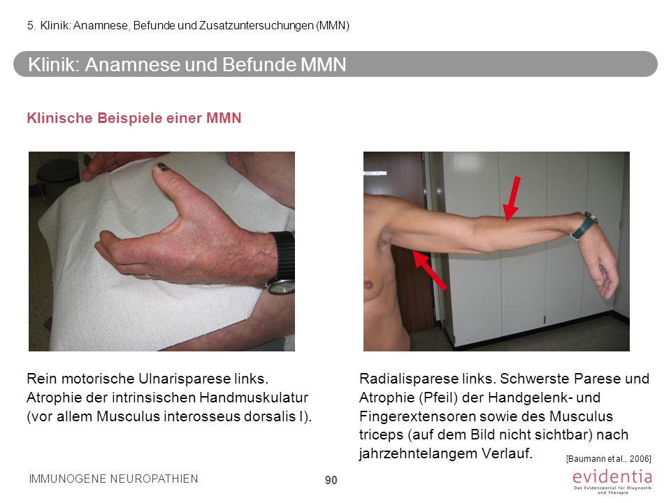 Klinik: Anamnese und Befunde MMN Klinische Beispiele einer MMN Rein motorische Ulnarisparese links. Atrophie der intrinsischen Handmuskulatur (vor all