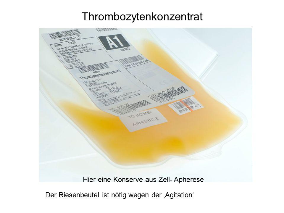 Thrombozytenkonzentrat Hier eine Konserve aus Zell- Apherese Der Riesenbeutel ist nötig wegen der 'Agitation'