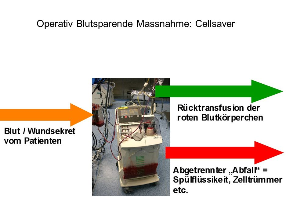 Operativ Blutsparende Massnahme: Cellsaver