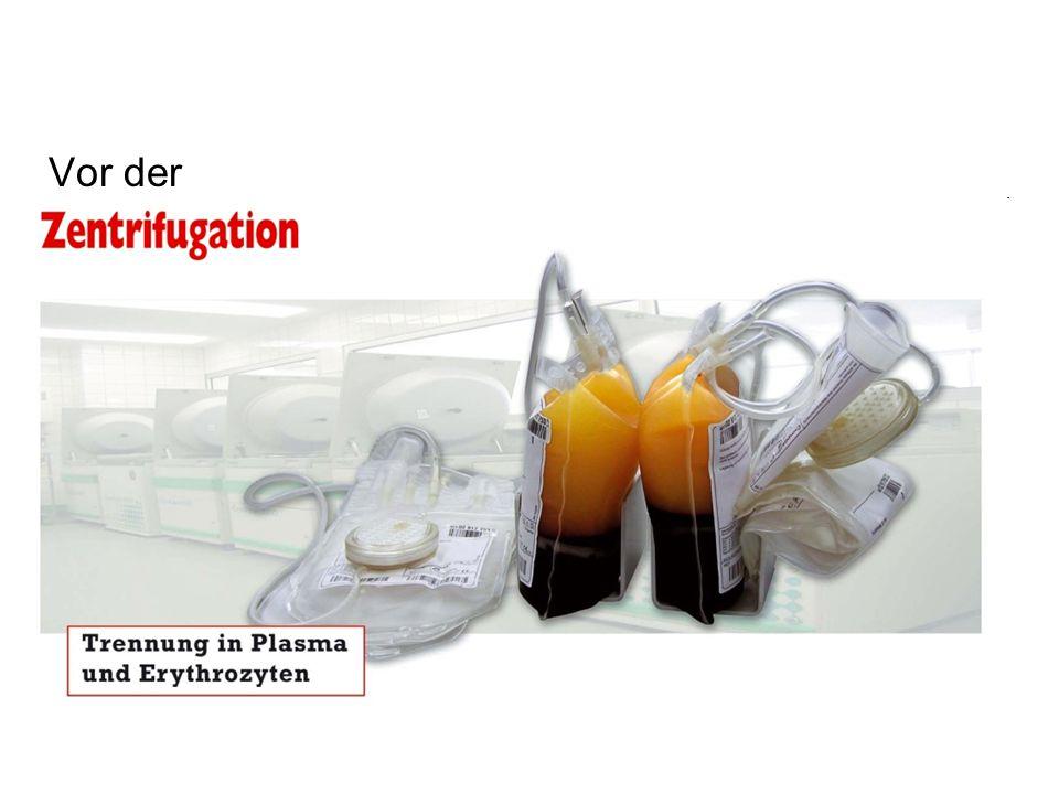 Separation der Komponenten aus einer Blutspende