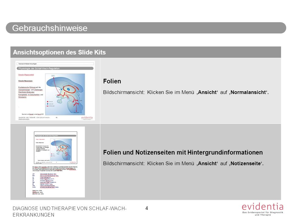 Gebrauchshinweise DIAGNOSE UND THERAPIE VON SCHLAF-WACH- ERKRANKUNGEN 4 Ansichtsoptionen des Slide Kits Folien Bildschirmansicht: Klicken Sie im Menü