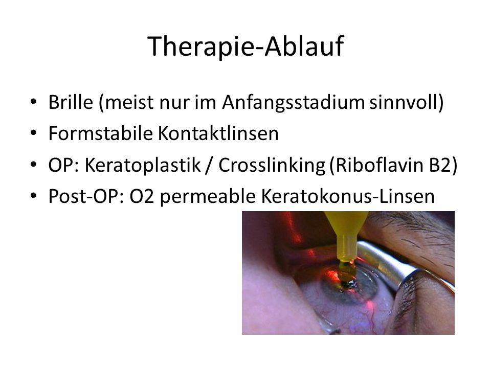 Therapie-Ablauf Brille (meist nur im Anfangsstadium sinnvoll) Formstabile Kontaktlinsen OP: Keratoplastik / Crosslinking (Riboflavin B2) Post-OP: O2 permeable Keratokonus-Linsen
