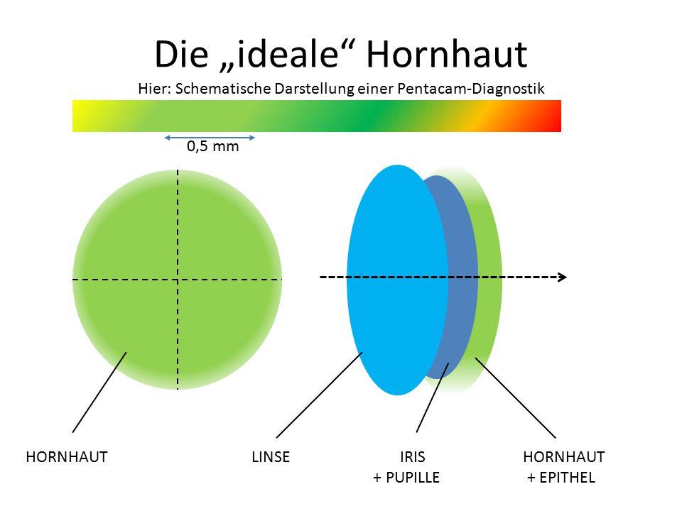 """Die """"ideale Hornhaut Hier: Schematische Darstellung einer Pentacam-Diagnostik HORNHAUT LINSE IRIS HORNHAUT + PUPILLE + EPITHEL 0,5 mm"""