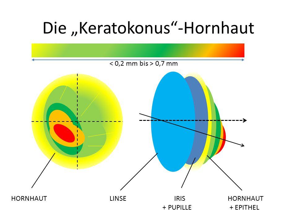 """Die """"Keratokonus -Hornhaut HORNHAUT LINSE IRIS HORNHAUT + PUPILLE + EPITHEL 0,7 mm"""