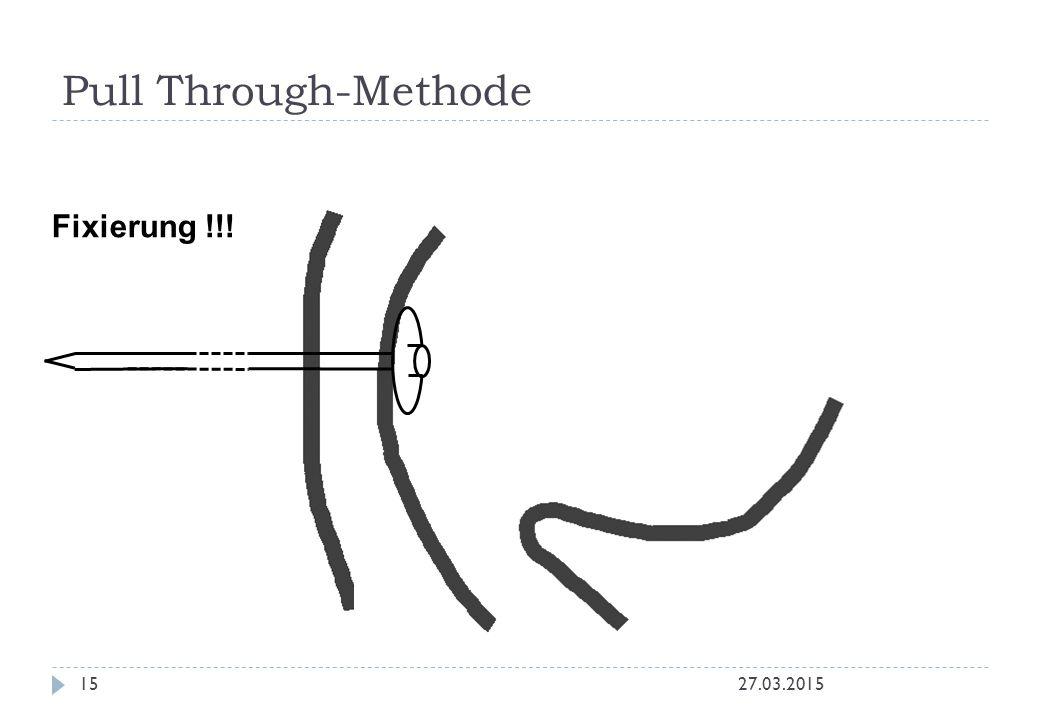 27.03.201515 Fixierung !!! Pull Through-Methode