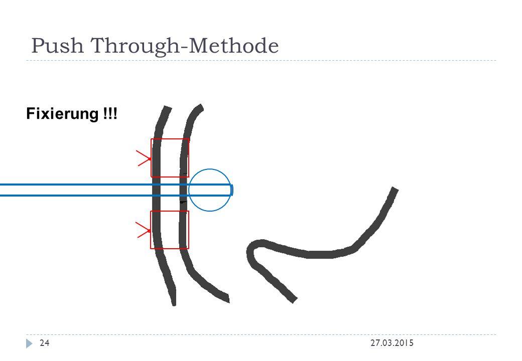 Push Through-Methode 27.03.201524 Fixierung !!!