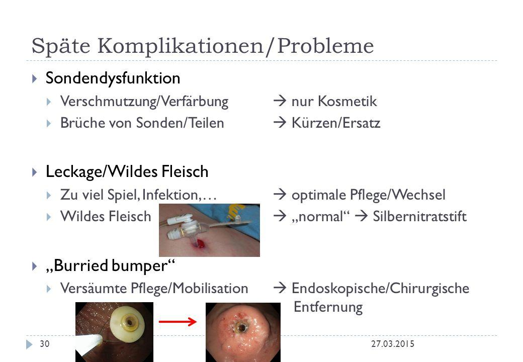 Späte Komplikationen/Probleme 27.03.201530  Sondendysfunktion  Verschmutzung/Verfärbung  nur Kosmetik  Brüche von Sonden/Teilen  Kürzen/Ersatz 