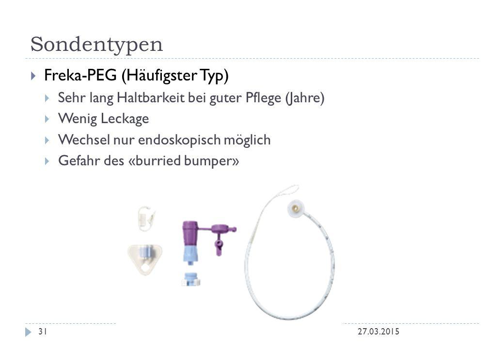  Freka-PEG (Häufigster Typ)  Sehr lang Haltbarkeit bei guter Pflege (Jahre)  Wenig Leckage  Wechsel nur endoskopisch möglich  Gefahr des «burried