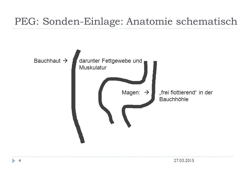 """PEG: Sonden-Einlage: Anatomie schematisch 27.03.20154 Magen:  """"frei flottierend in der Bauchhöhle Bauchhaut  darunter Fettgewebe und Muskulatur"""