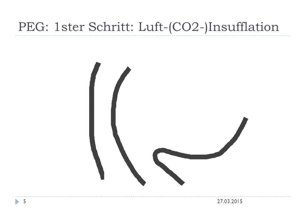 PEG: 1ster Schritt: Luft-(CO2-)Insufflation 27.03.20155