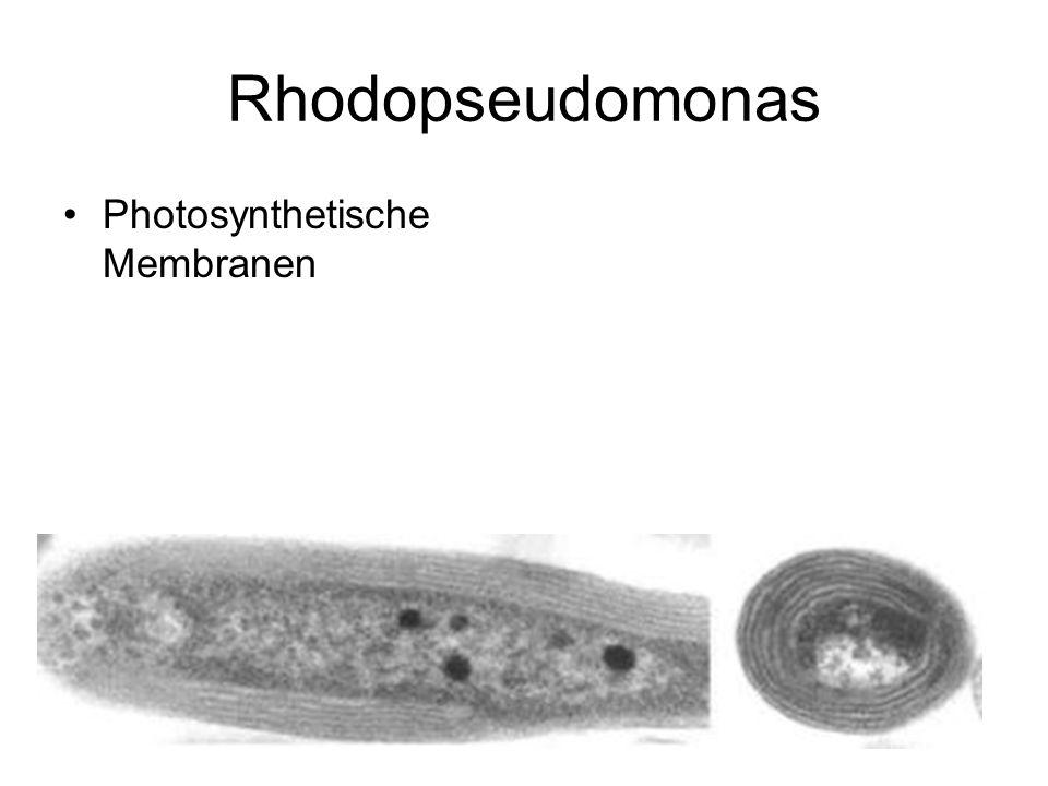 Rhodopseudomonas Photosynthetische Membranen