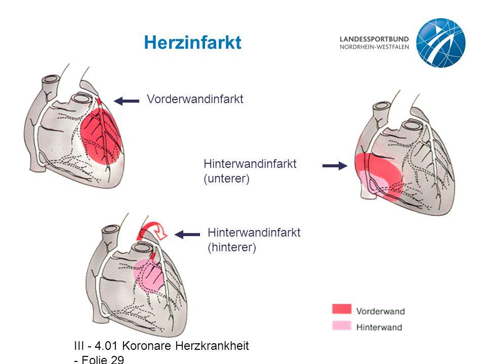 III - 4.01 Koronare Herzkrankheit - Folie 29 Herzinfarkt Vorderwandinfarkt Hinterwandinfarkt (unterer) Hinterwandinfarkt (hinterer)