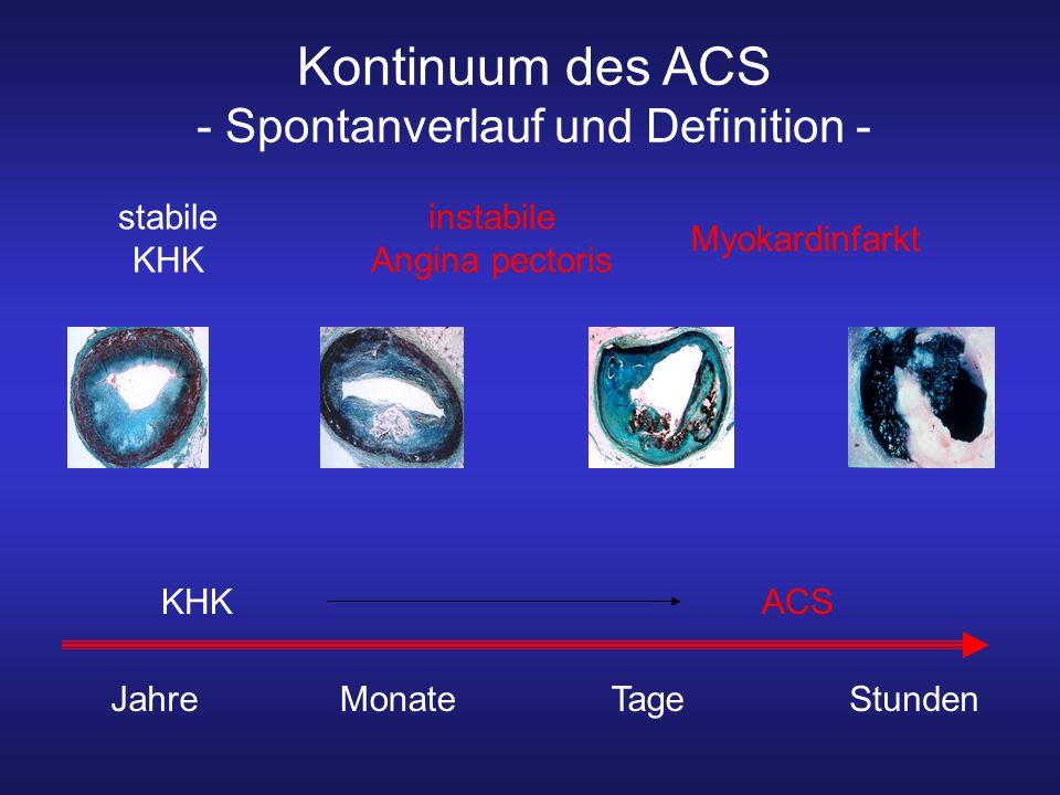 stabile KHK instabile Angina pectoris ACSKHK Myokardinfarkt Kontinuum des ACS - Spontanverlauf und Definition - JahreMonateTageStunden