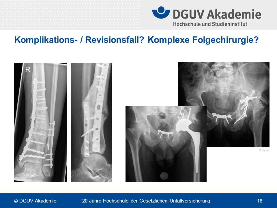Komplikations- / Revisionsfall? Komplexe Folgechirurgie? © Vetter © DGUV Akademie 20 Jahre Hochschule der Gesetzlichen Unfallversicherung 16