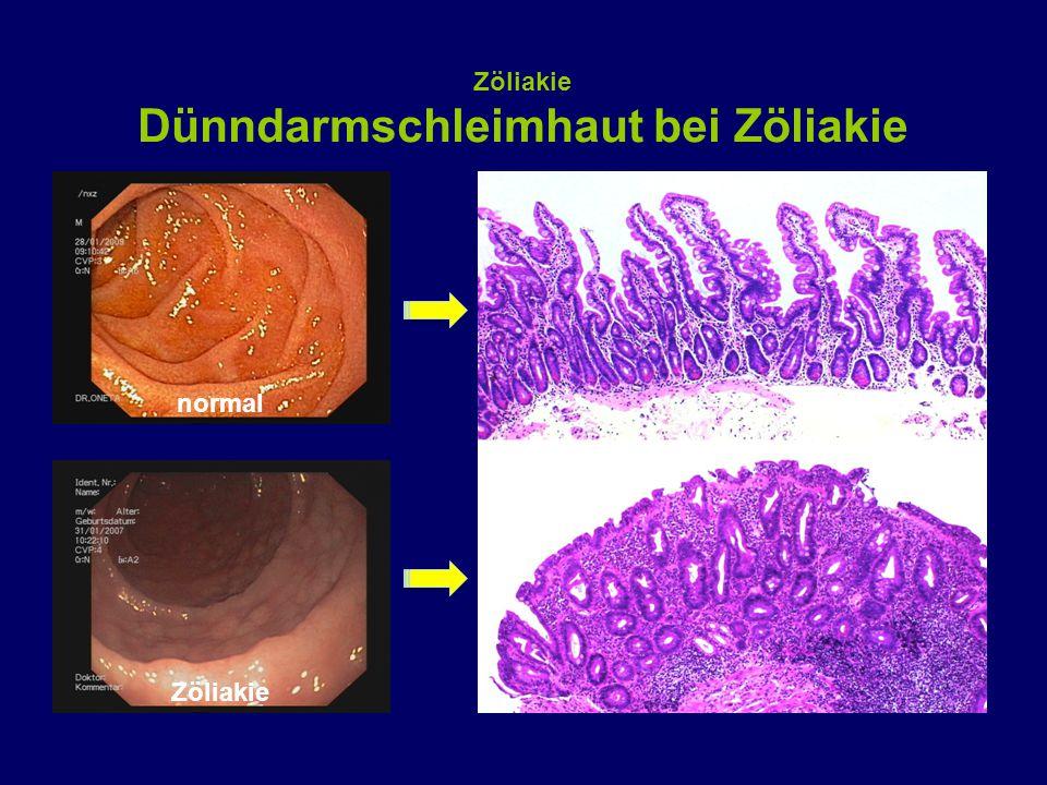 normal Zöliakie Dünndarmschleimhaut bei Zöliakie