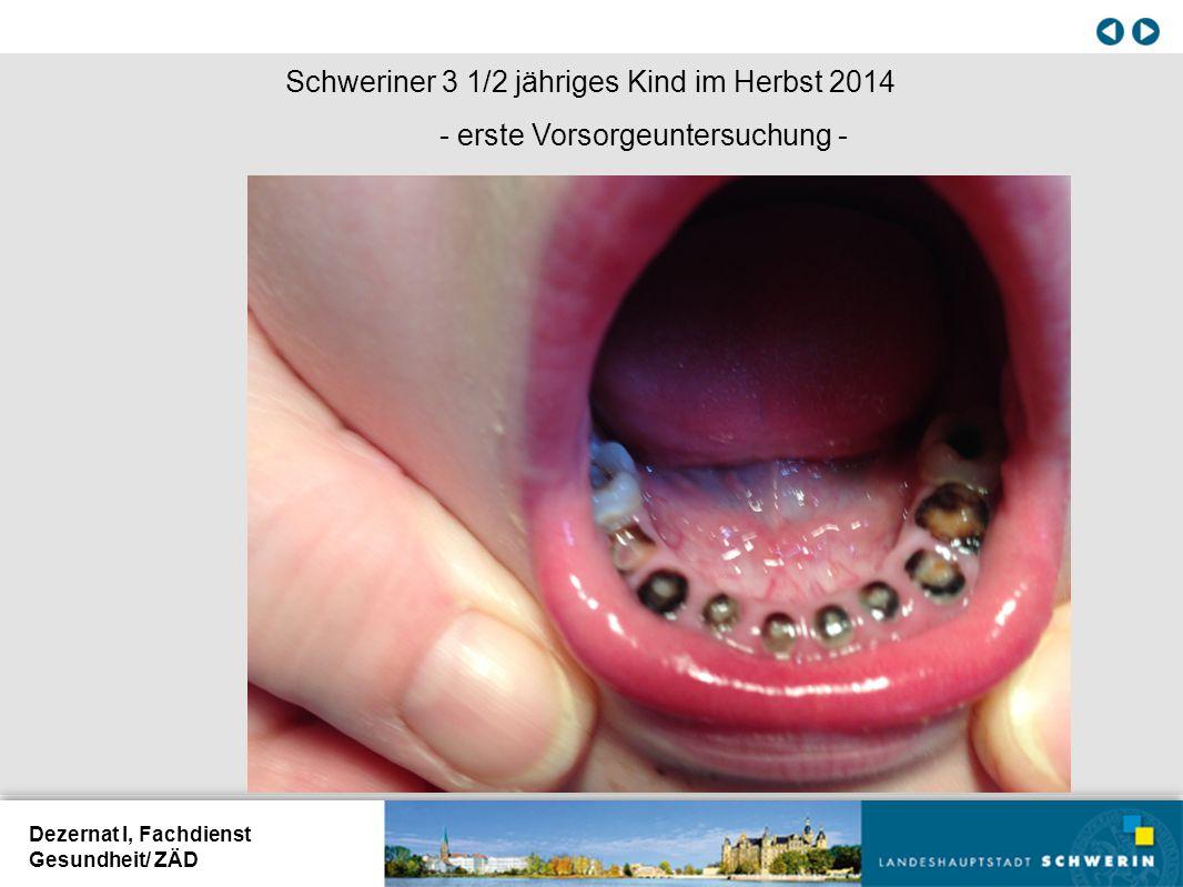 Dezernat I, Fachdienst Gesundheit/ ZÄD Schweriner 3 1/2 jähriges Kind im Herbst 2014 - erste Vorsorgeuntersuchung -
