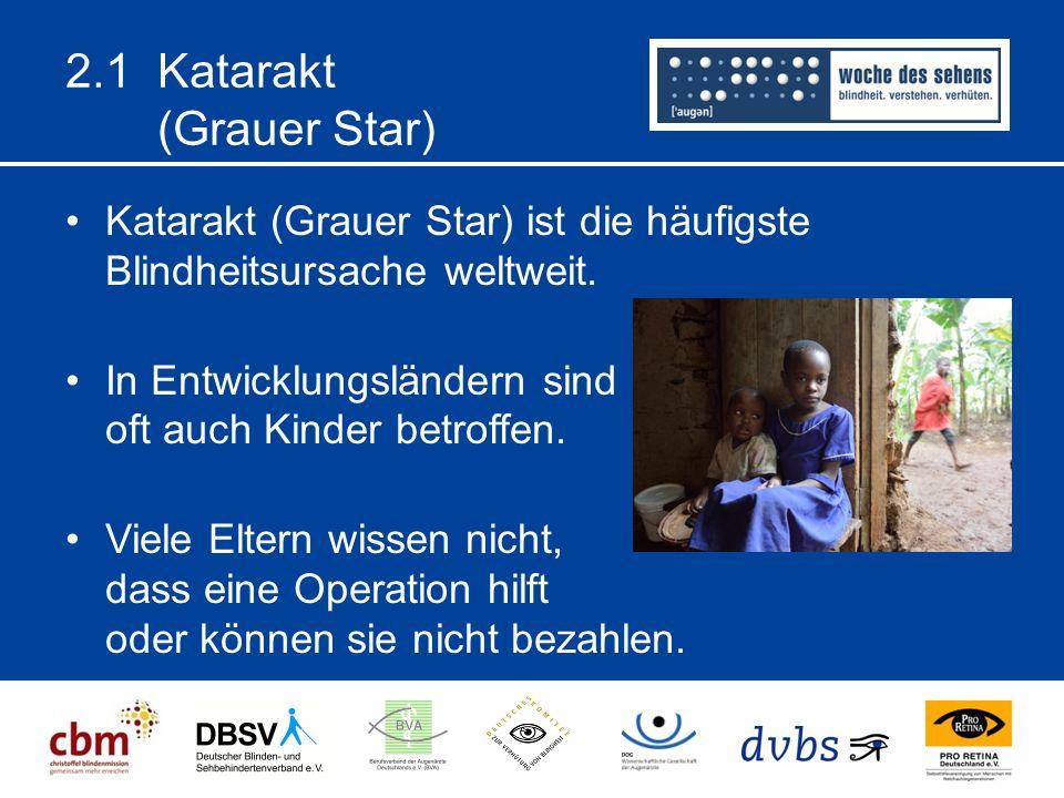 2.1 Katarakt (Grauer Star) Katarakt (Grauer Star) ist die häufigste Blindheitsursache weltweit. In Entwicklungsländern sind oft auch Kinder betroffen.