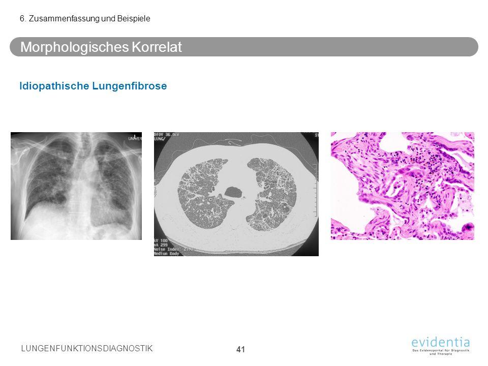 Morphologisches Korrelat Idiopathische Lungenfibrose 6. Zusammenfassung und Beispiele LUNGENFUNKTIONSDIAGNOSTIK 41