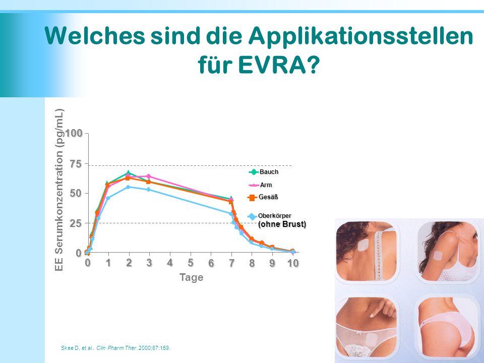 Skee D, et al. Clin Pharm Ther. 2000;67:159. Welches sind die Applikationsstellen für EVRA? 100 10789 012345 6 0 25 50 75 EE Serumkonzentration (pg/mL