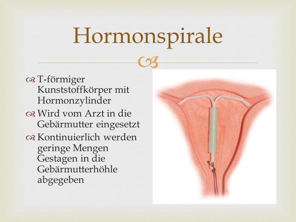   T-förmiger Kunststoffkörper mit Hormonzylinder  Wird vom Arzt in die Gebärmutter eingesetzt  Kontinuierlich werden geringe Mengen Gestagen in di