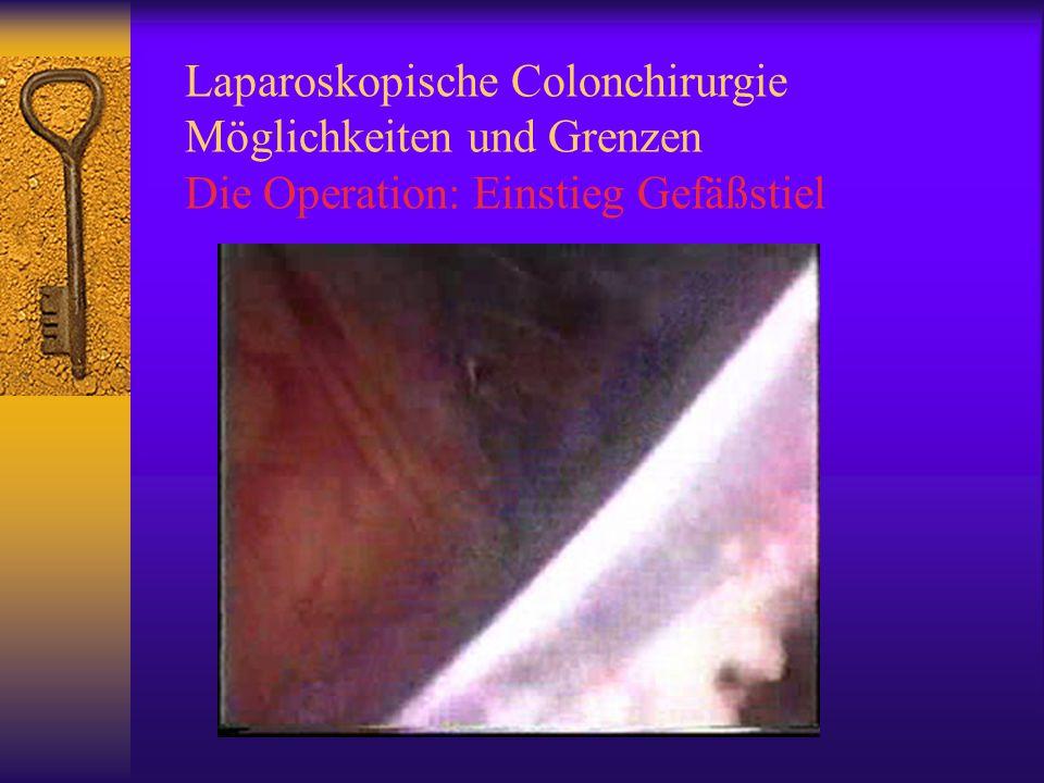 Laparoskopische Colonchirurgie Möglichkeiten und Grenzen Die Operation: Einstieg Gefäßstiel