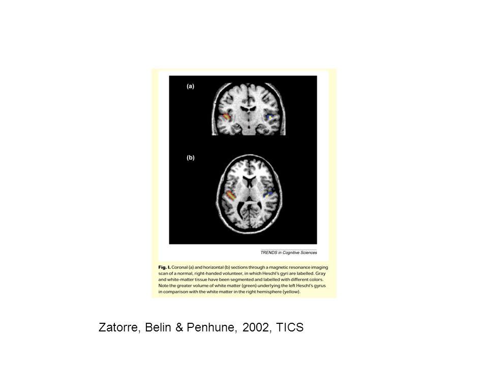 Zatorre, Belin & Penhune, 2002, TICS