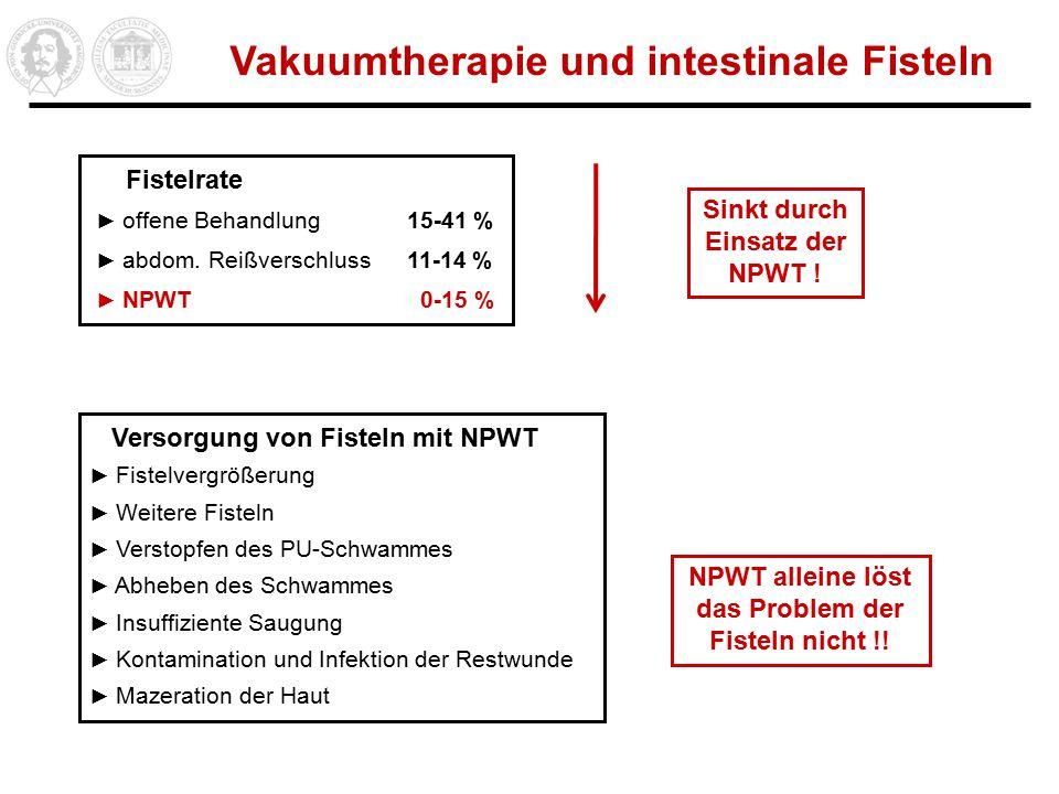 Vakuumtherapie und intestinale Fisteln Fistelrate ► offene Behandlung 15-41 % ► abdom.