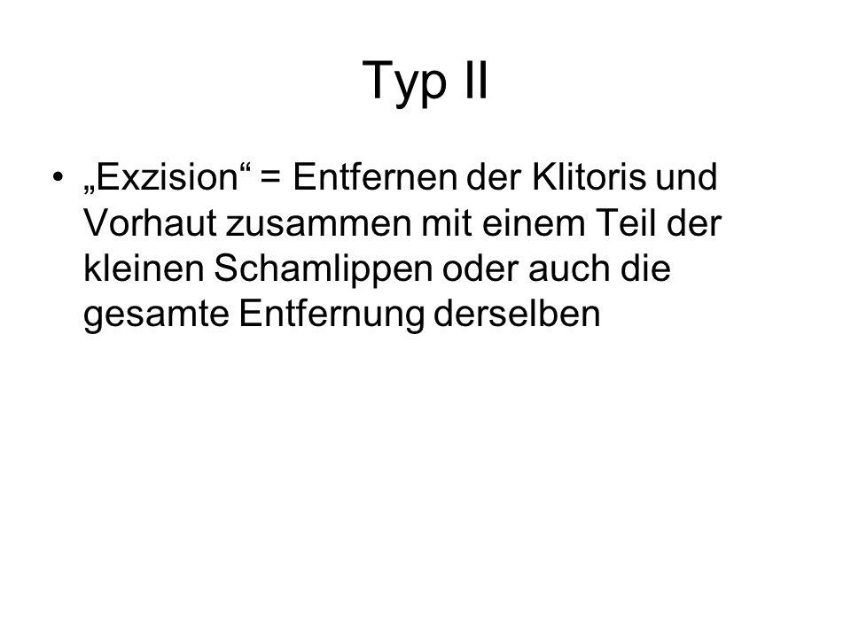 """Typ II """"Exzision"""" = Entfernen der Klitoris und Vorhaut zusammen mit einem Teil der kleinen Schamlippen oder auch die gesamte Entfernung derselben"""
