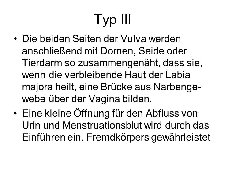 Typ III Die beiden Seiten der Vulva werden anschließend mit Dornen, Seide oder Tierdarm so zusammengenäht, dass sie, wenn die verbleibende Haut der La