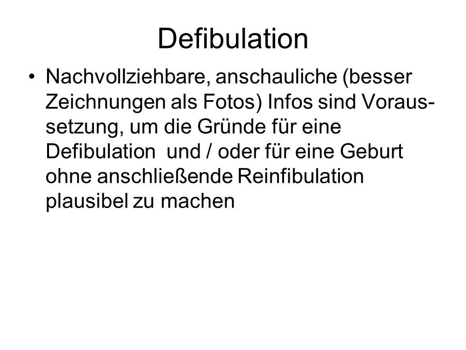 Defibulation Nachvollziehbare, anschauliche (besser Zeichnungen als Fotos) Infos sind Voraus- setzung, um die Gründe für eine Defibulation und / oder