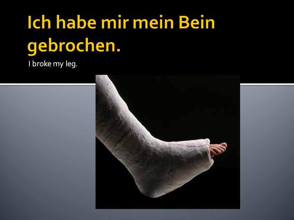 I broke my leg.