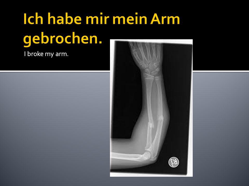 I broke my arm.