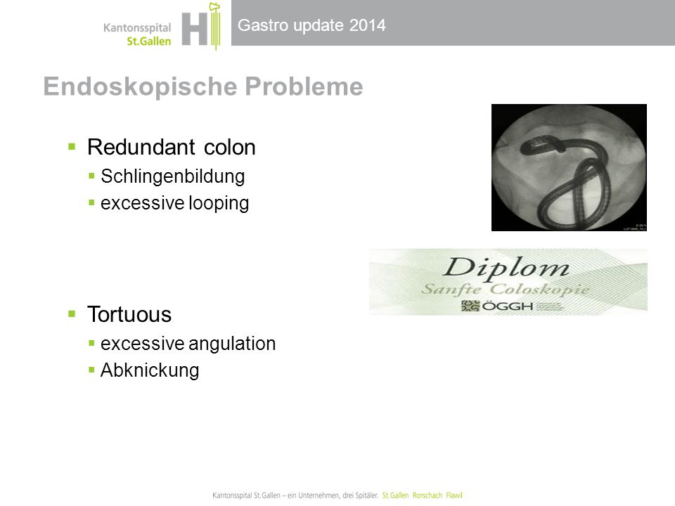 Gastro update 2014 Endoskopische Probleme  Redundant colon  Schlingenbildung  excessive looping  Tortuous  excessive angulation  Abknickung