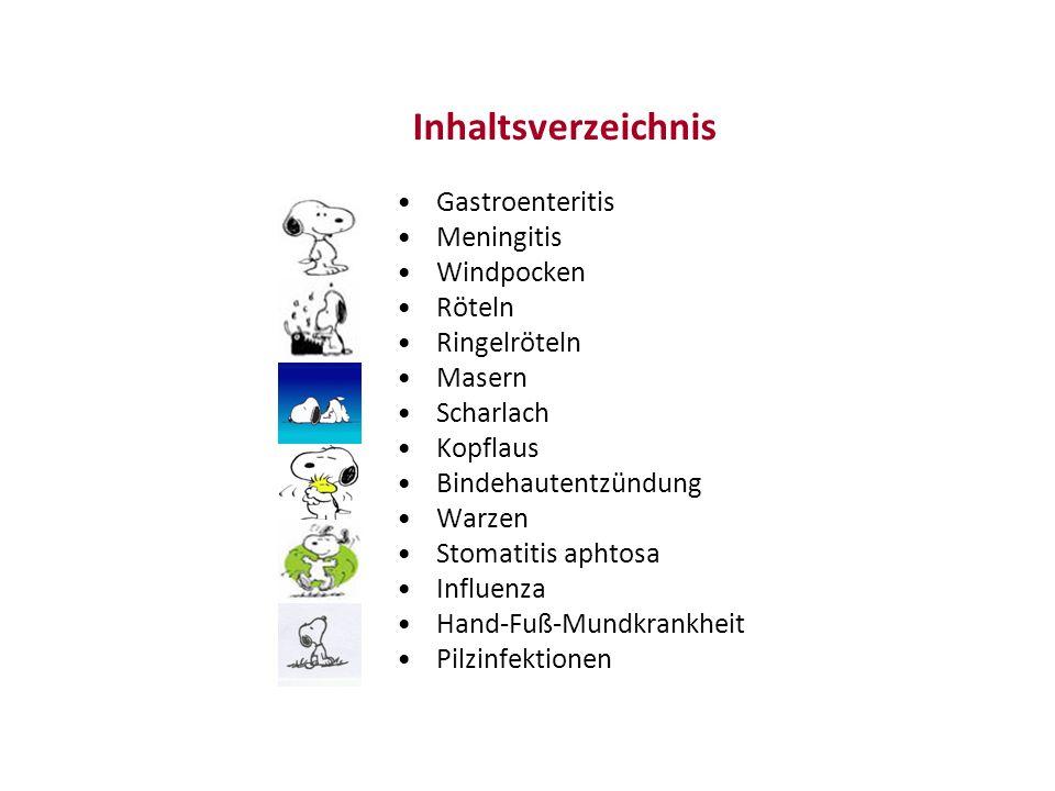 Masern - Symptome Fieber – Lichtempfindlichkeit Schnupfen / Husten Entzündliche Veränderungen im Mund-Rachen Bräunlich rosafarbenes Exanthem 3-7 Tag nach ersten Symptomen Beginnt im Gesicht und hinter den Ohren