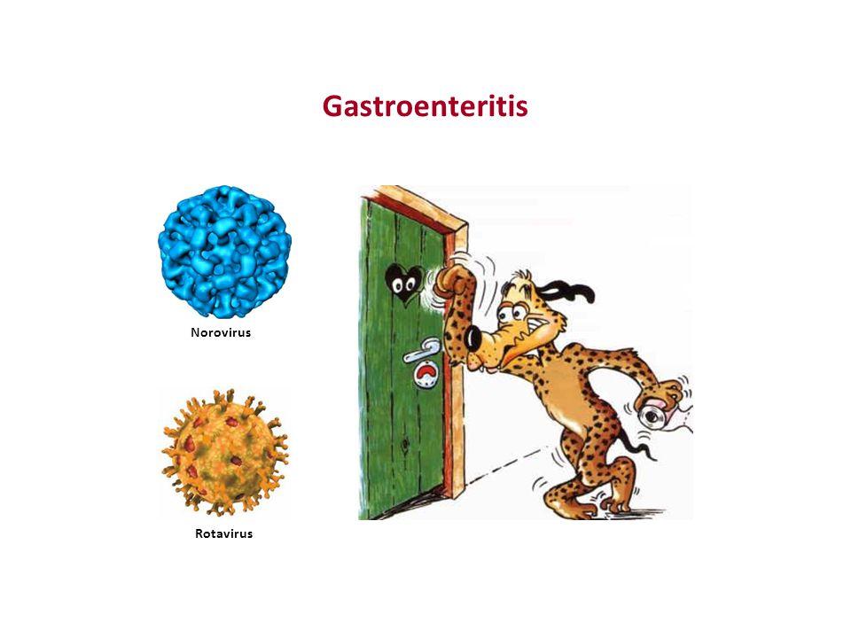 Gastroenteritis - Übertragung Ungewaschene Hände nach Toilettengang / Windelwechseln Kontaminierte Wickelauflage / WC Mangelnde Hygiene mit Lebensmittel
