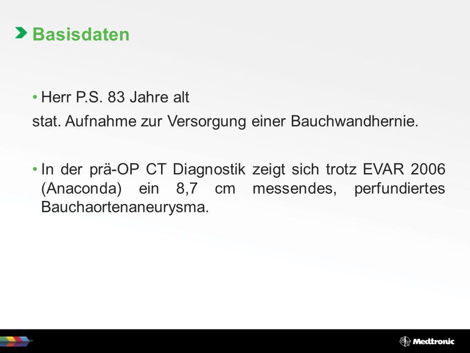 Präoperative Bilder NB: Endoleak Bauchwandhernie